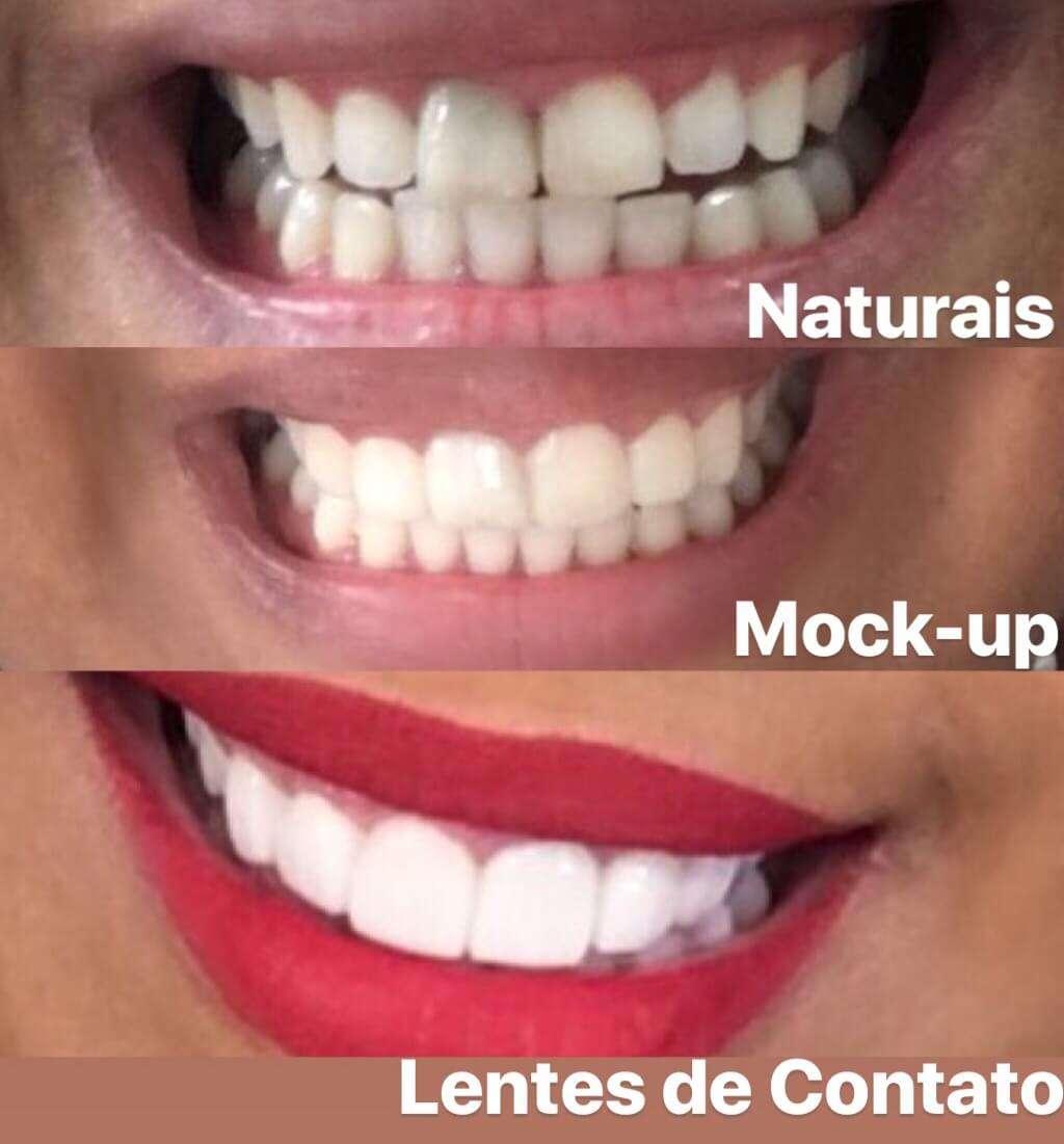 8659320dfcff0 lentes para dentes valor - Clínica Ideal