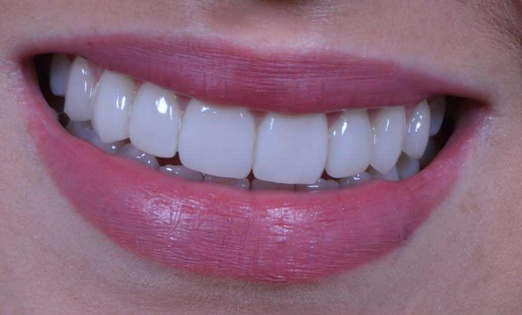 987555f923789 preço da lente de contato dental - Clínica Ideal