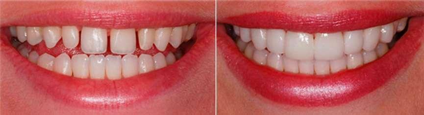 c39bfe10aa6bb quanto custa uma lente de contato dental - Clínica Ideal