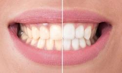 clareamento dental no dentista