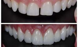 lente de contato dental custo