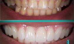 lente de contato nos dentes preço