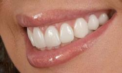 lentes para dentes valor