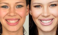 quanto custa colocar lente de contato nos dentes
