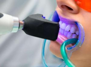 clareamento dental profissional