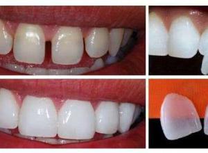 lente contato dental preço