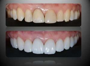lente de contato dental preço médio