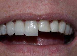 lente de contato nos dentes valor