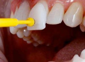 lente de dente