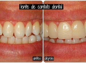 lente dental valor