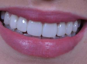 lente dental valor