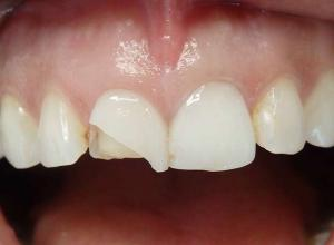 lentes de contato dental valor