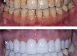 preço clareamento dentário