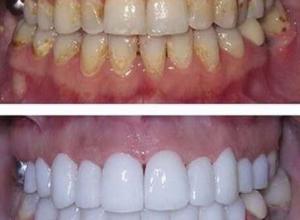 preço de um clareamento dental