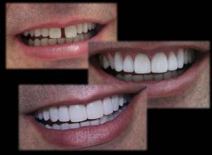 quanto custa lente de contato para dente