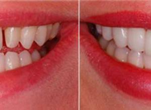 quanto custa uma lente de contato dental
