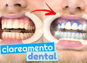 valor clareamento dental