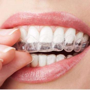 clareamento dental com moldeira