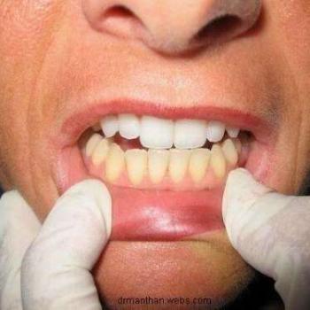 clareamento dental com moldeira preço