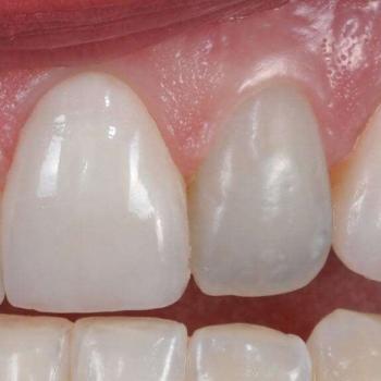 clareamento interno do dente preço