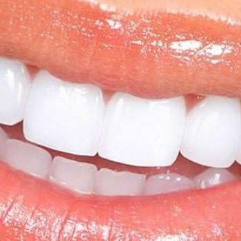 lente de contato bucal