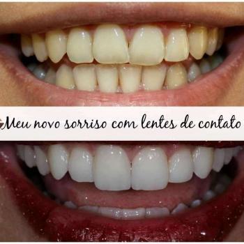 lente de contato dental preço por dente