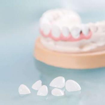 lente de contato dentário