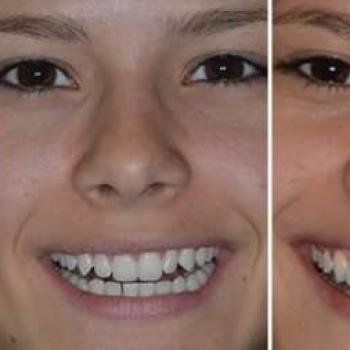 lente de contato pros dentes