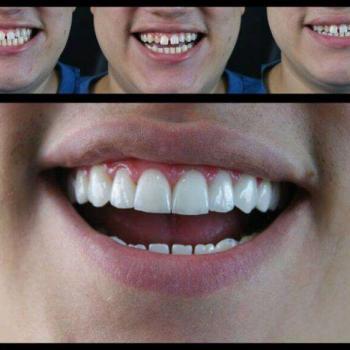 lentes de porcelana dental