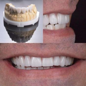 lentes de porcelana nos dentes
