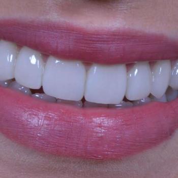 preço da lente de contato dental