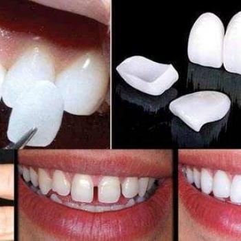 quanto custa a lente de contato dental